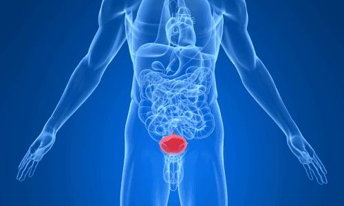 рак уретры