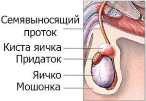 Как делают операцию на яичниках у мужчин