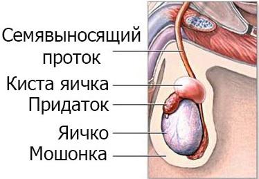 Операция по удалению сперматоцеле