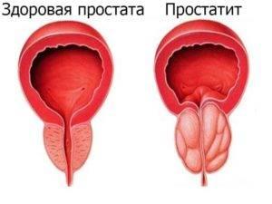 Болезни половых органов у мужчин