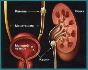 Мочекаменная болезнь у мужчин