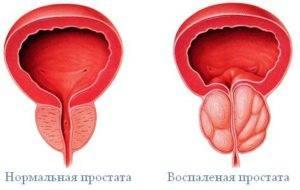 Простатовезикулит