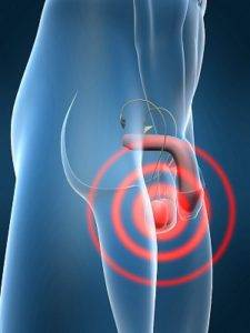 Что делать если болит правое яичко