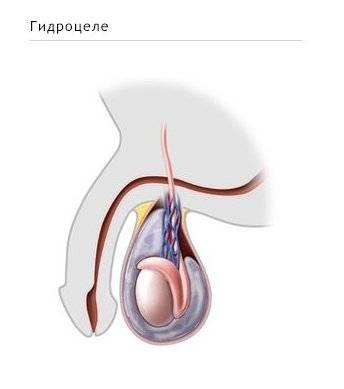 Боль в яичках при простатите - почему возникает симптомы лечение