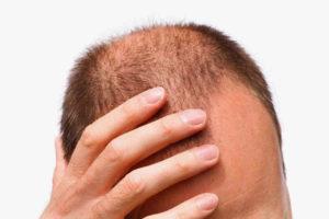 Ломаются и выпадают волосы - что делать