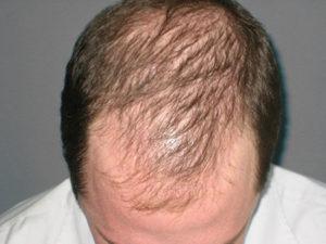 Кефирные маски от выпадения волос