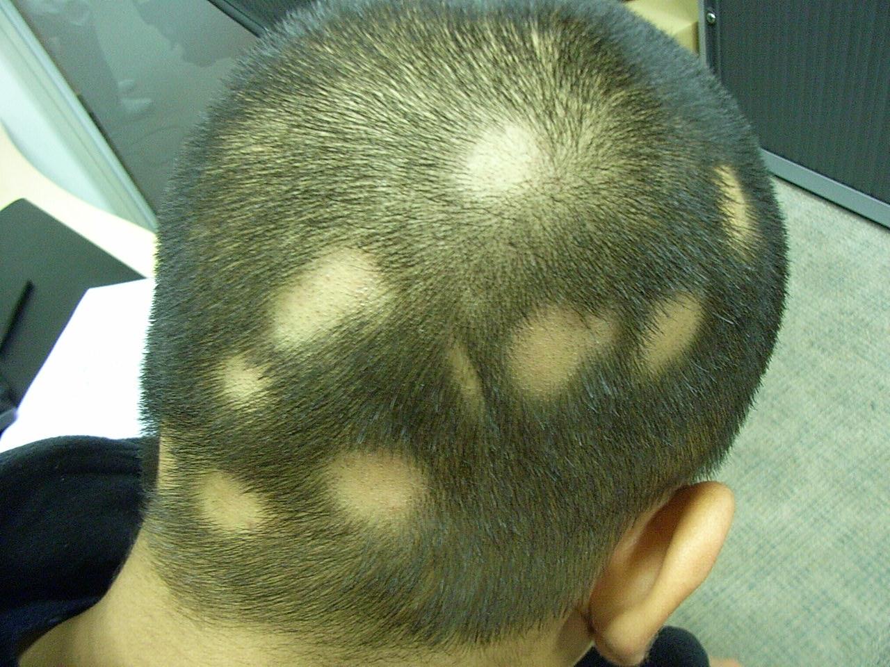 Выпадение волос аутоиммунное заболевание