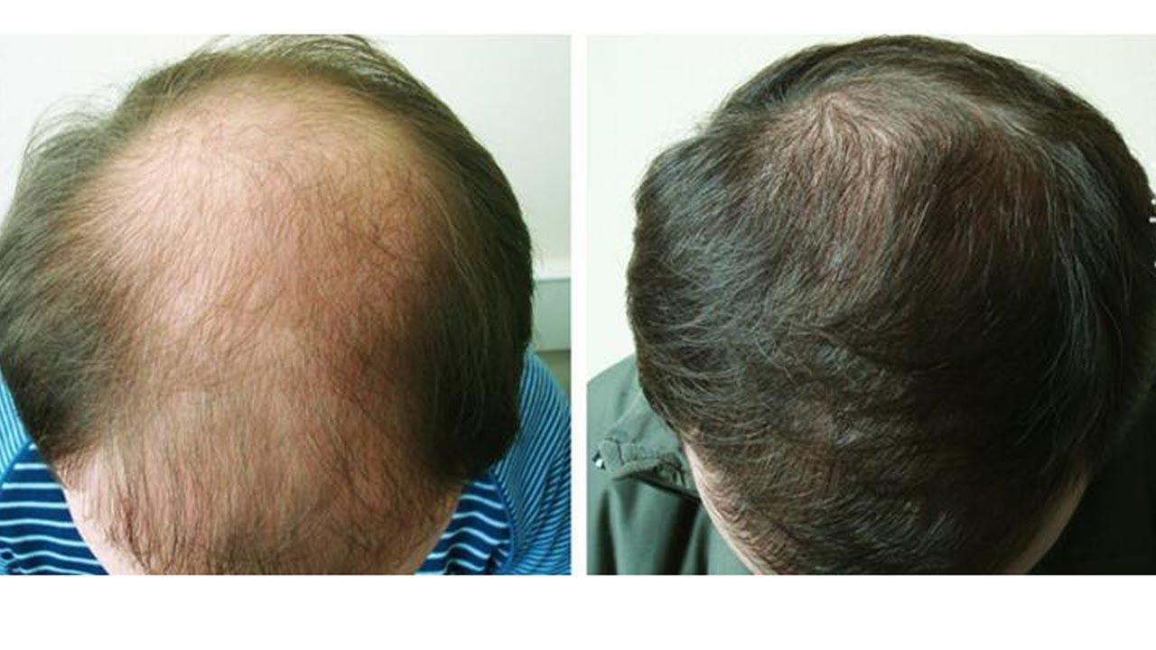 Кому помог массаж головы от выпадения волос