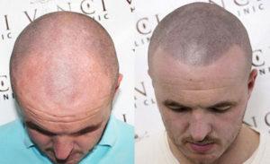 Сыворотка для роста волос Алерана