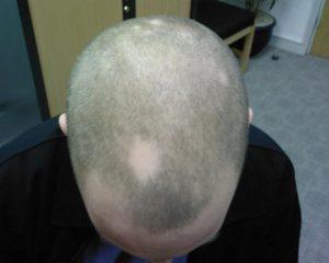 Гнездная алопеция у мужчин лечение