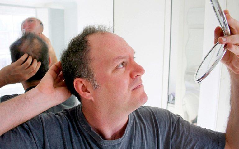 Стали выпадать волосы мужчина