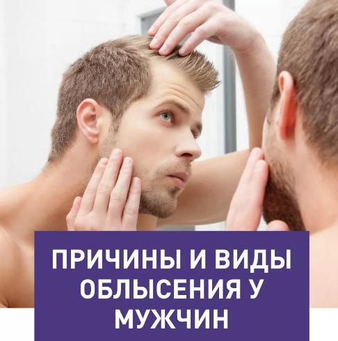 почему мужчины лысеют а женщины нет
