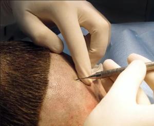 Сколько стоит пересадка волос на голове