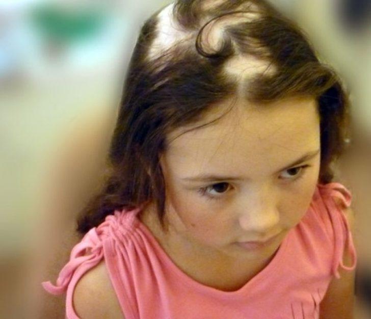 Лечение выпадения волос у девочки подростка 183