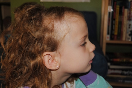Что делать если выпадают волосы на голове и перхоть
