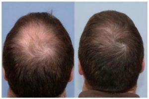 Лучшие эффективные средства от выпадения волос у мужчин