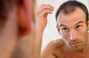 При каких заболеваниях выпадают волосы