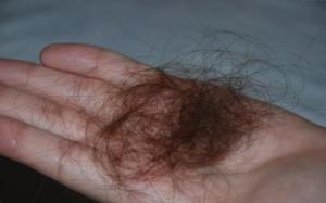 Волосы выпадают клоками