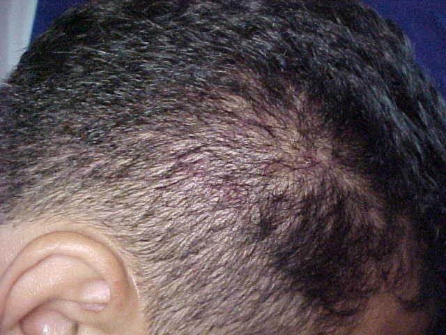 От аллергии выпадают волосы у ребенка