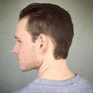 Могут ли от перхоти выпадать волосы