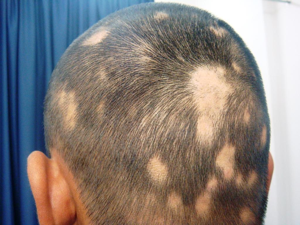 Причины и лечение очаговой алопеции у женщин
